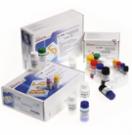 Серологические равно молекулярно-биологические методы (ИФА да ПЦР-анализ) интересах эффективной лабораторной диагностики клещевых инфекций